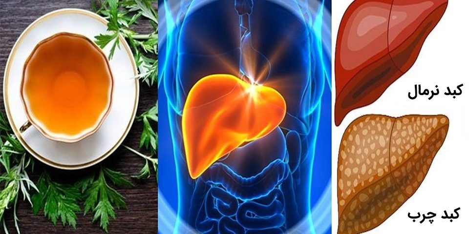 Fatty liver and its treatment